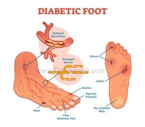 پای دیابتی