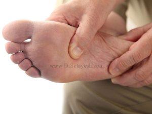 درمان پای دیابتی