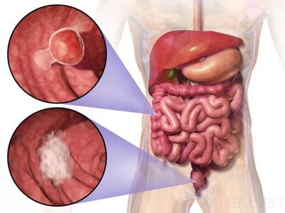 سرطان روده بزرگ و کوچک
