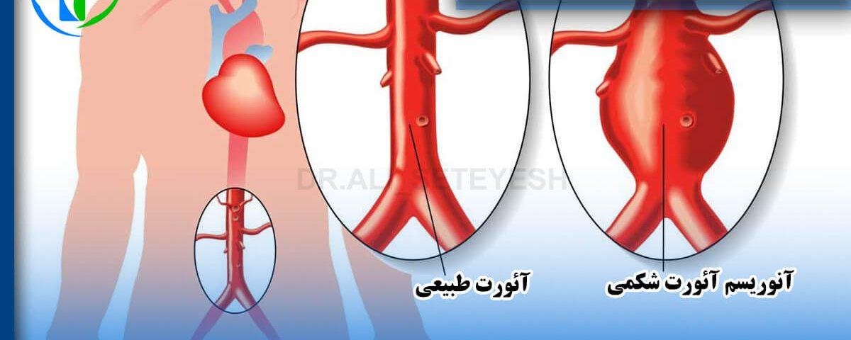 درمان و جراحی آنوریسم