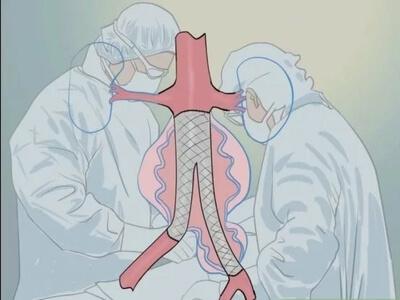 جراحی آنوریسم
