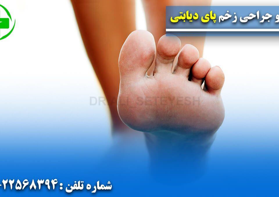 درمان و جراحی پای دیابتی