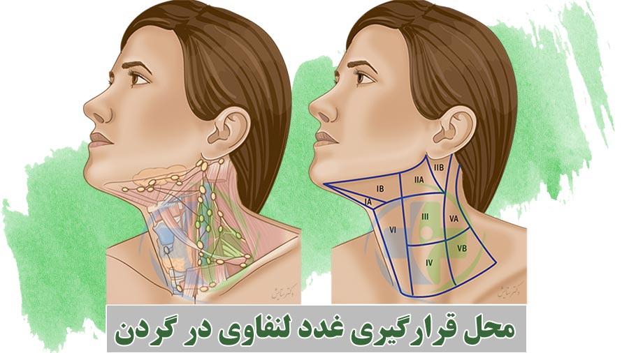 جا های غدد لنفاوی در گردن
