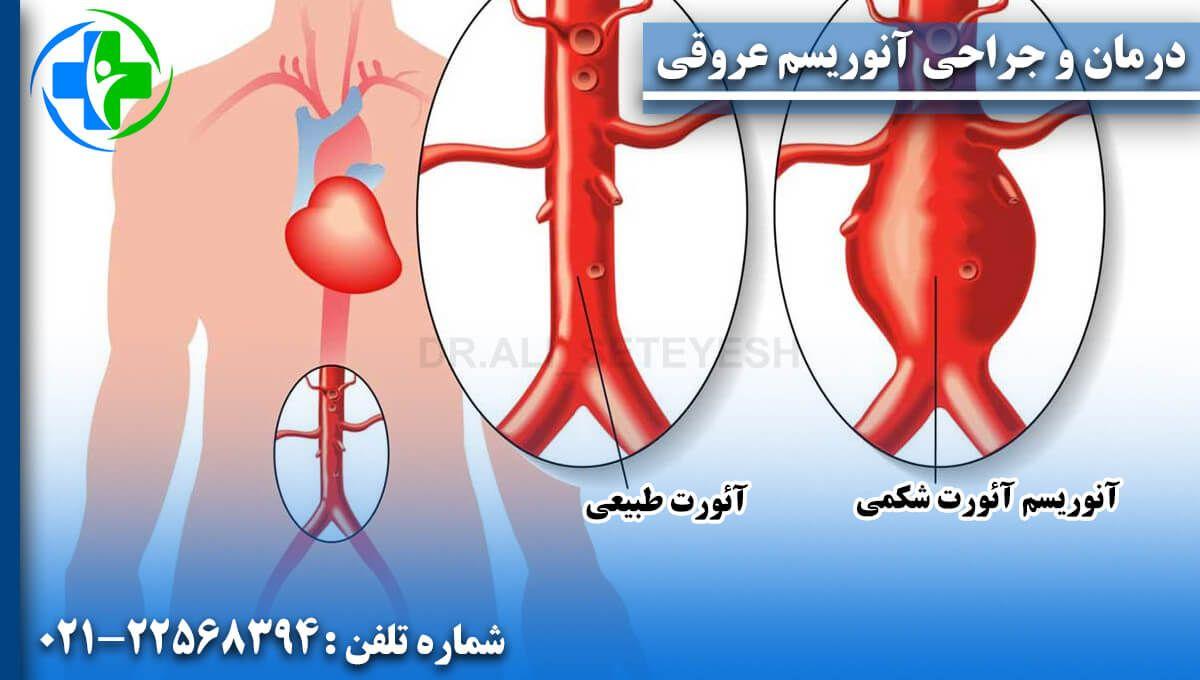 درمان و جراحی آنوریسم عروقی