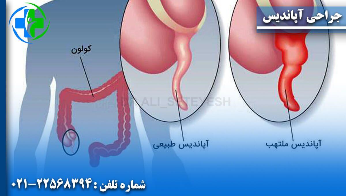 جراحی آپاندیس