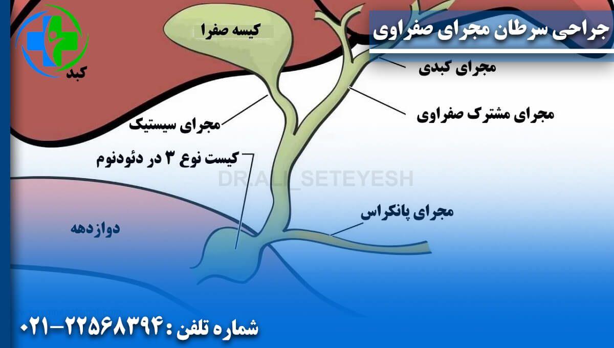 جراحی سرطان مجرای صفراوی