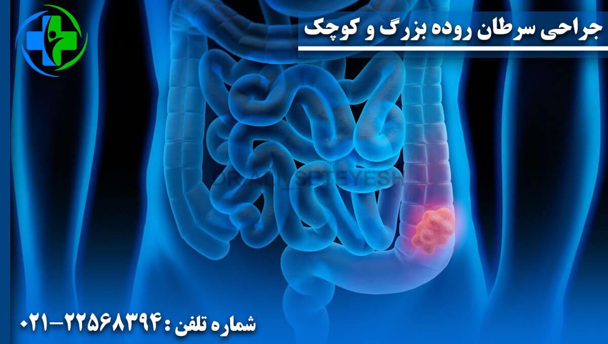 جراحی سرطان روده بزرگ و کوچک