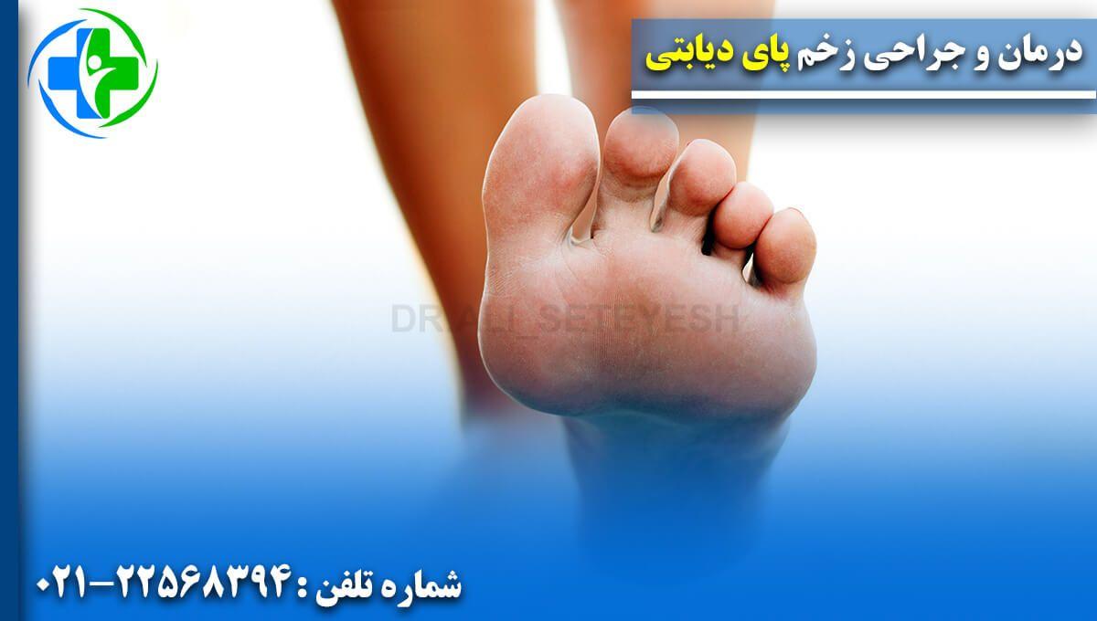 درمان و جراحی زخم پای دیابتی