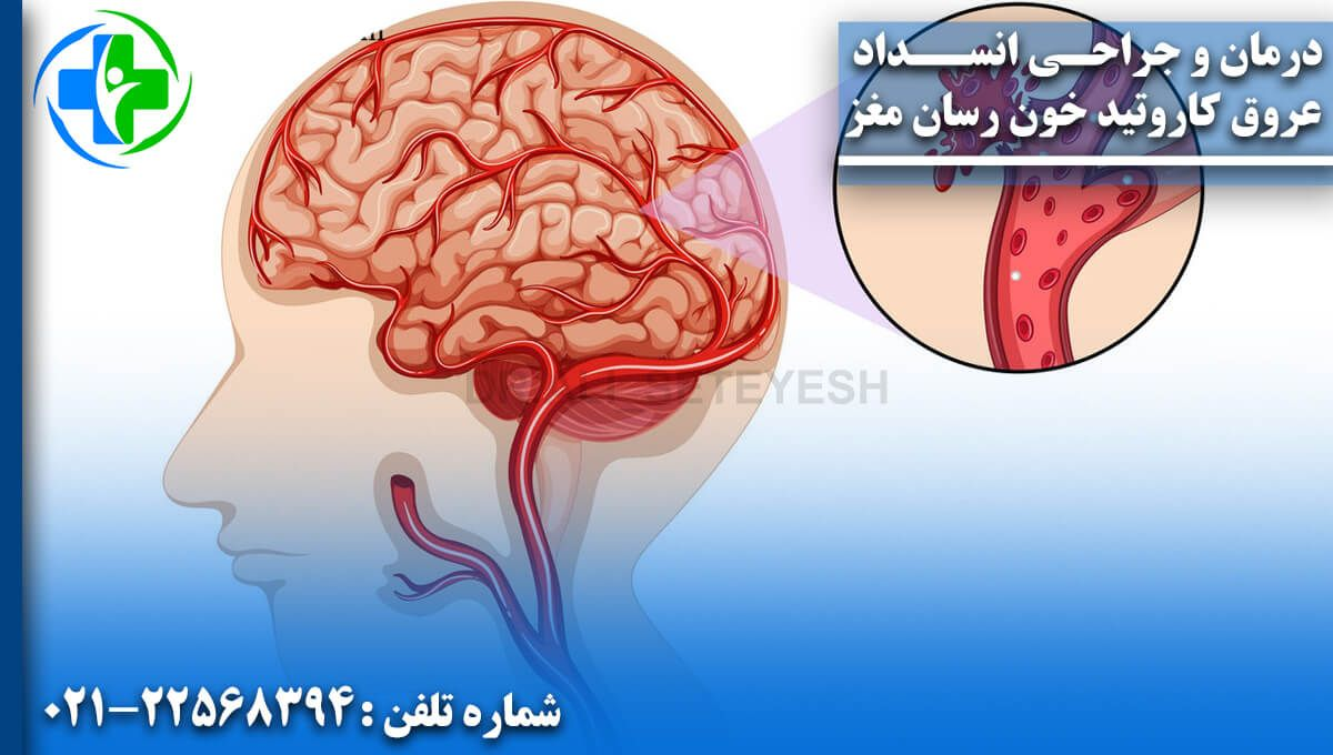 درمان و جراحی انسداد عروق کاروتید خونرسان مغز